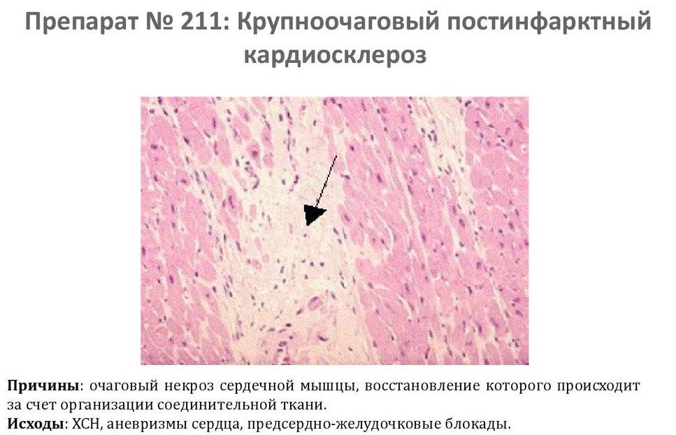 Крупноочаговый постинфарктный кардиосклероз