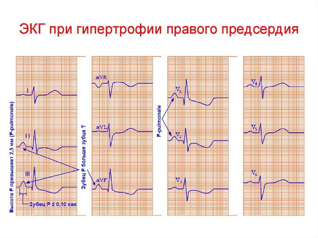 Гипертрофия ПП на ЭКГ
