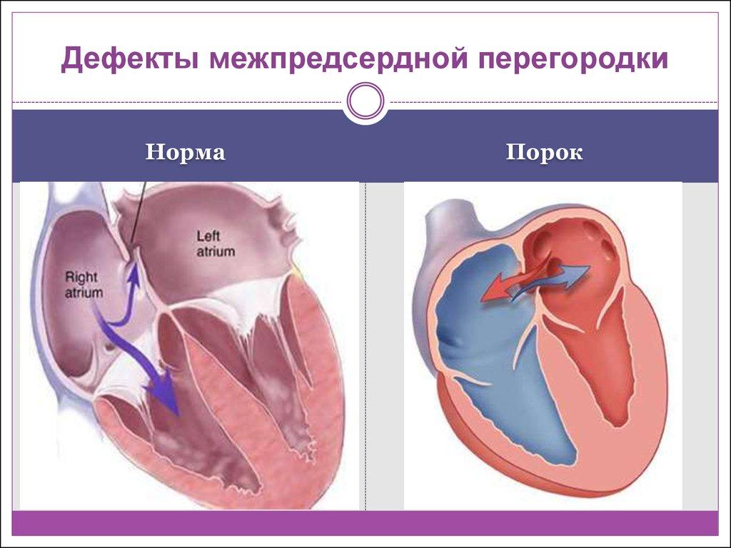 ДМПП сердца