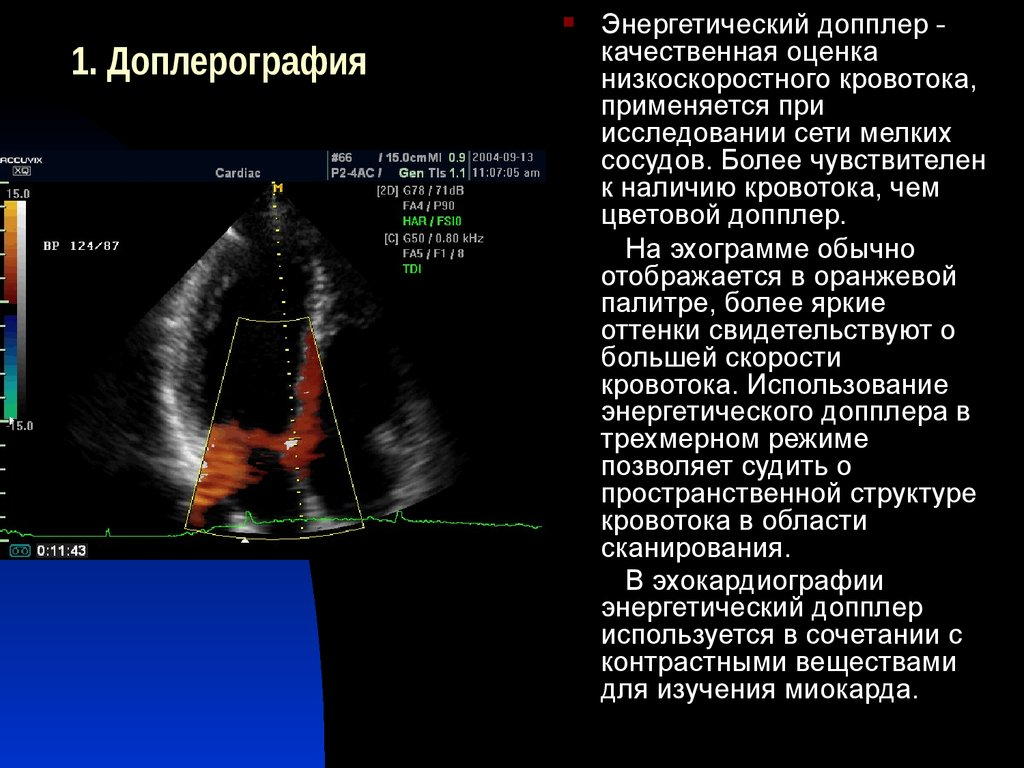 Допплерография сердца