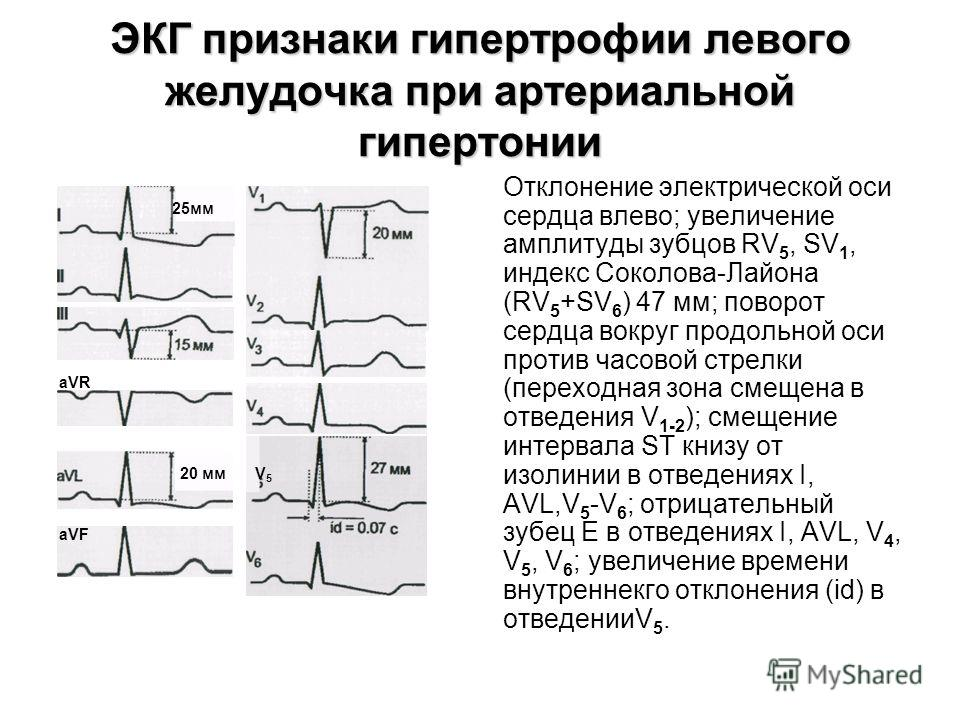 Пример АГ на ЭКГ