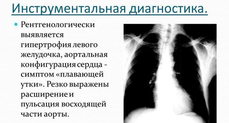 Патология на рентгеновском снимке