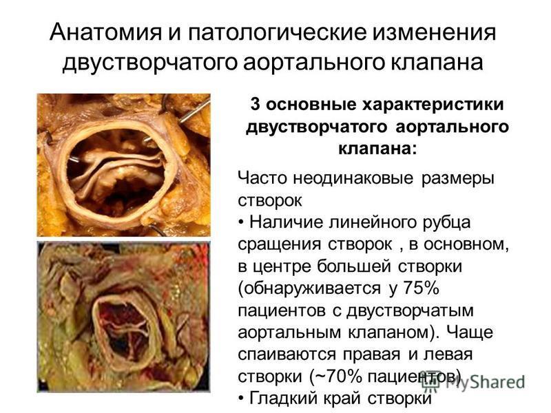 Анатомия бикуспидального АК