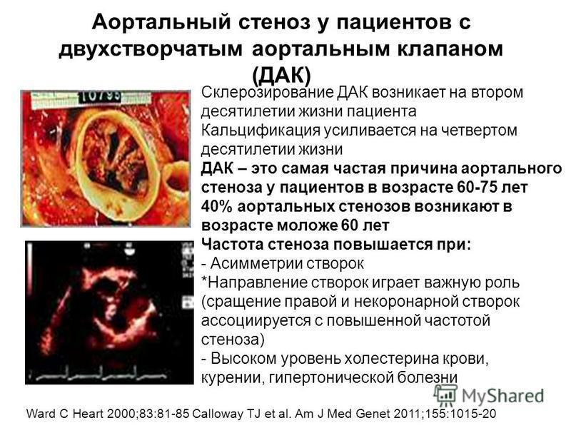Аортальный стеноз у пациентов с ДК