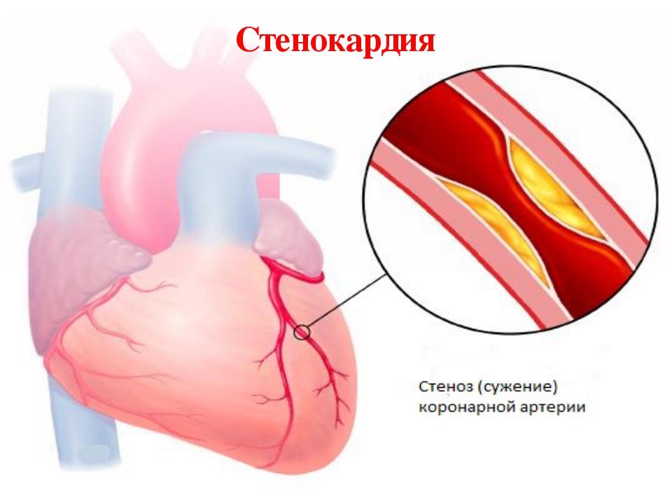 Кислородное голодание сердечной мышцы