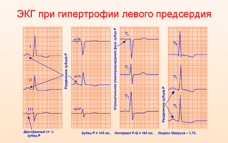 Увеличение стенок левого предсердия на ЭКГ