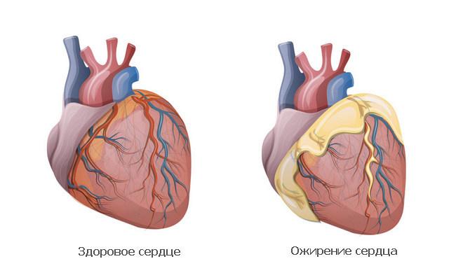 Ожирение сердечной мышцы