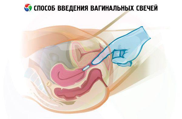Способ введения вагинальных свечей