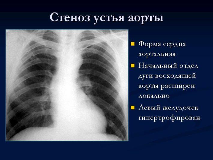 Проявления на рентгене