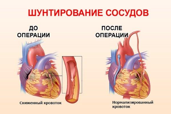 Результаты операции