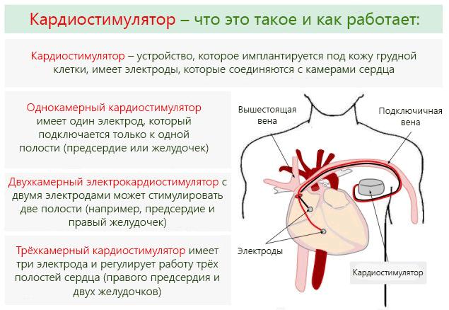 Виды и процесс работы ЭКС