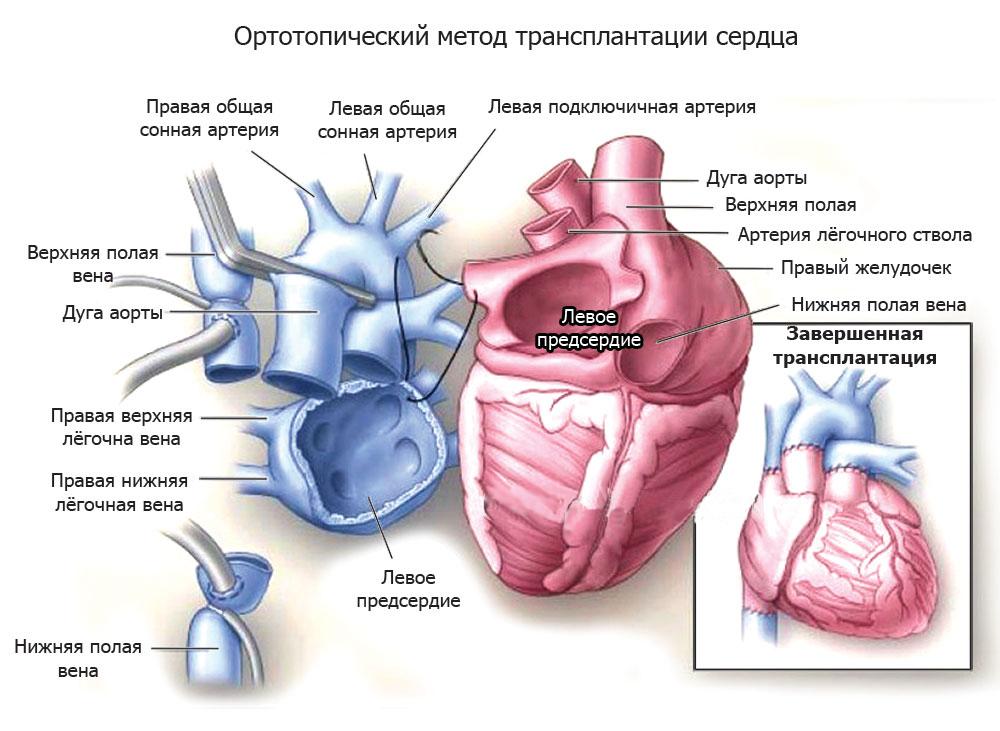 Ортотопический метод операции