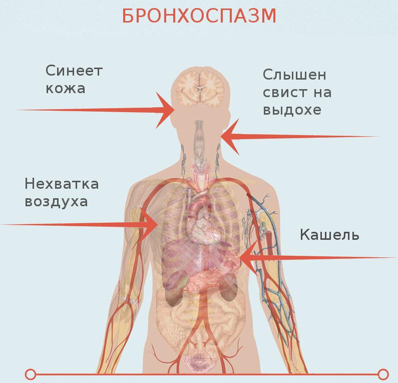 Проявления бронхоспазма