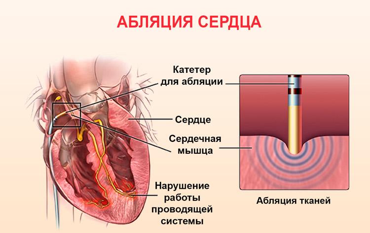 Процедура абляции