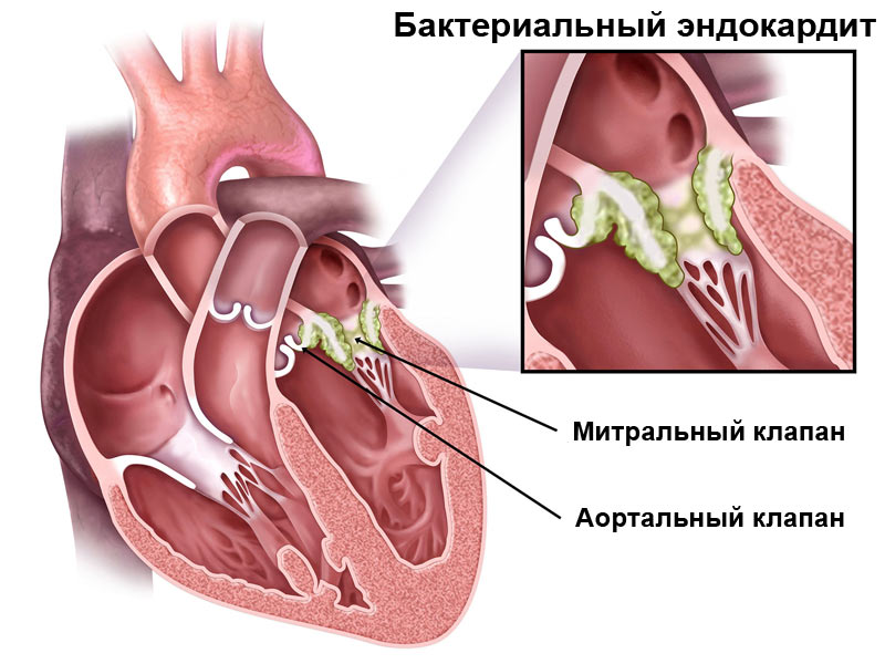 Воспаления на аортальном и митральном клапанах