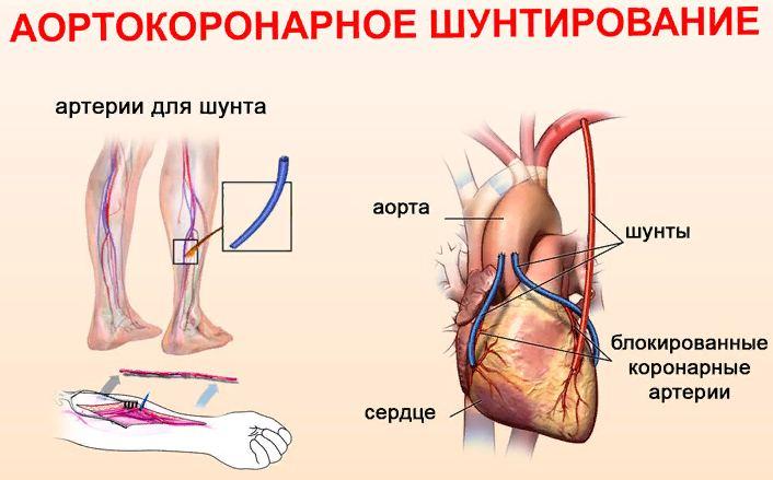 Принципы проведения операции