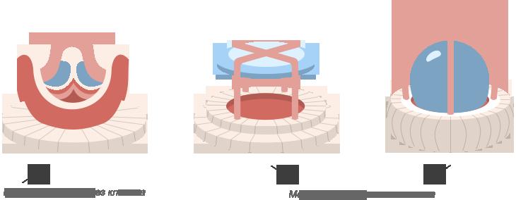 Протезирование клапанов