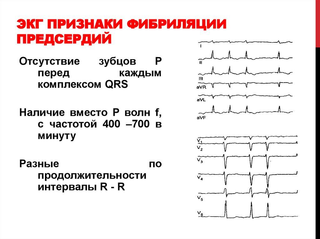 Фибрилляция на ЭКГ