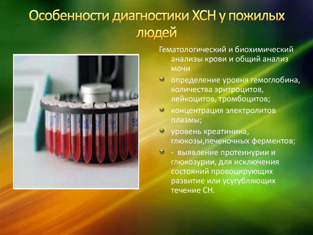 Анализы крови при СН