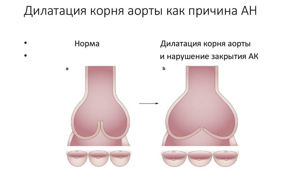 Дилатация корня аорты