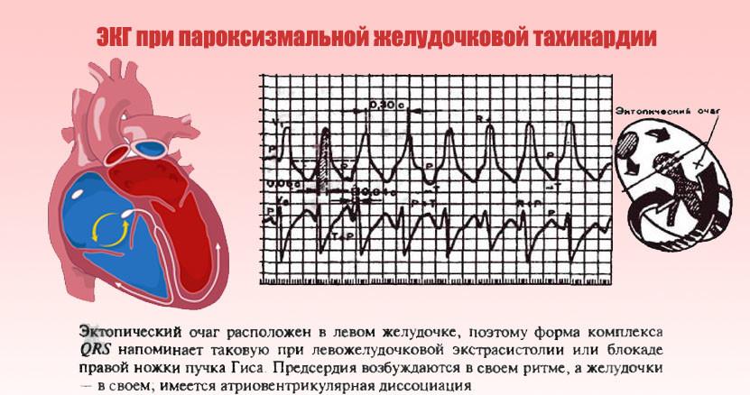 ЭКГ при пароксизмальной ЖТ