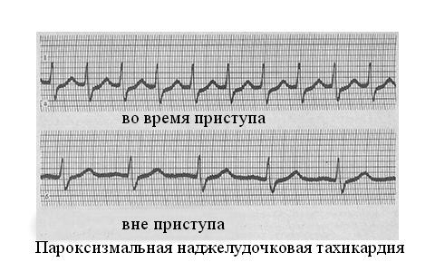 Патология на ЭКГ во время и до приступа