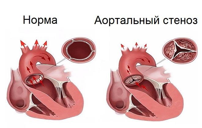 Сужение клапана сердца