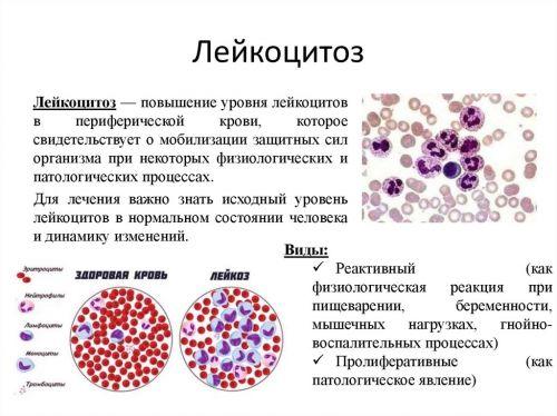 Лейкоцитоз