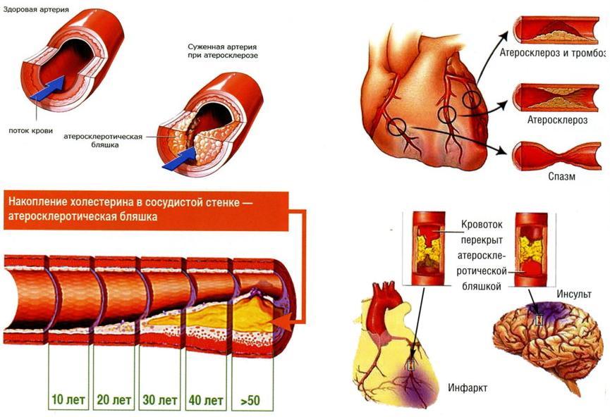 Процесс развития атеросклероза