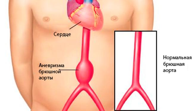 Аневризма брюшной артерии