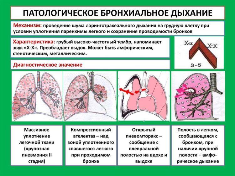 Патологическое бронхиальное дыхание