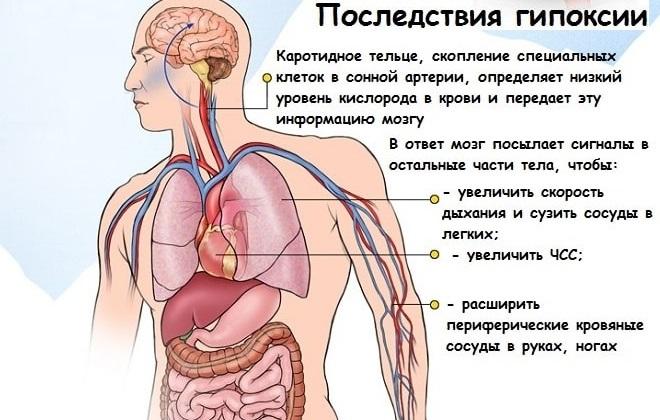 Кислородное голодание организма