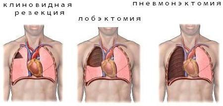 Виды операций на легких