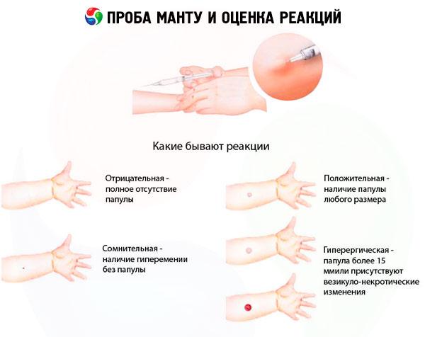 Оценка реакций туберкулиновой пробы