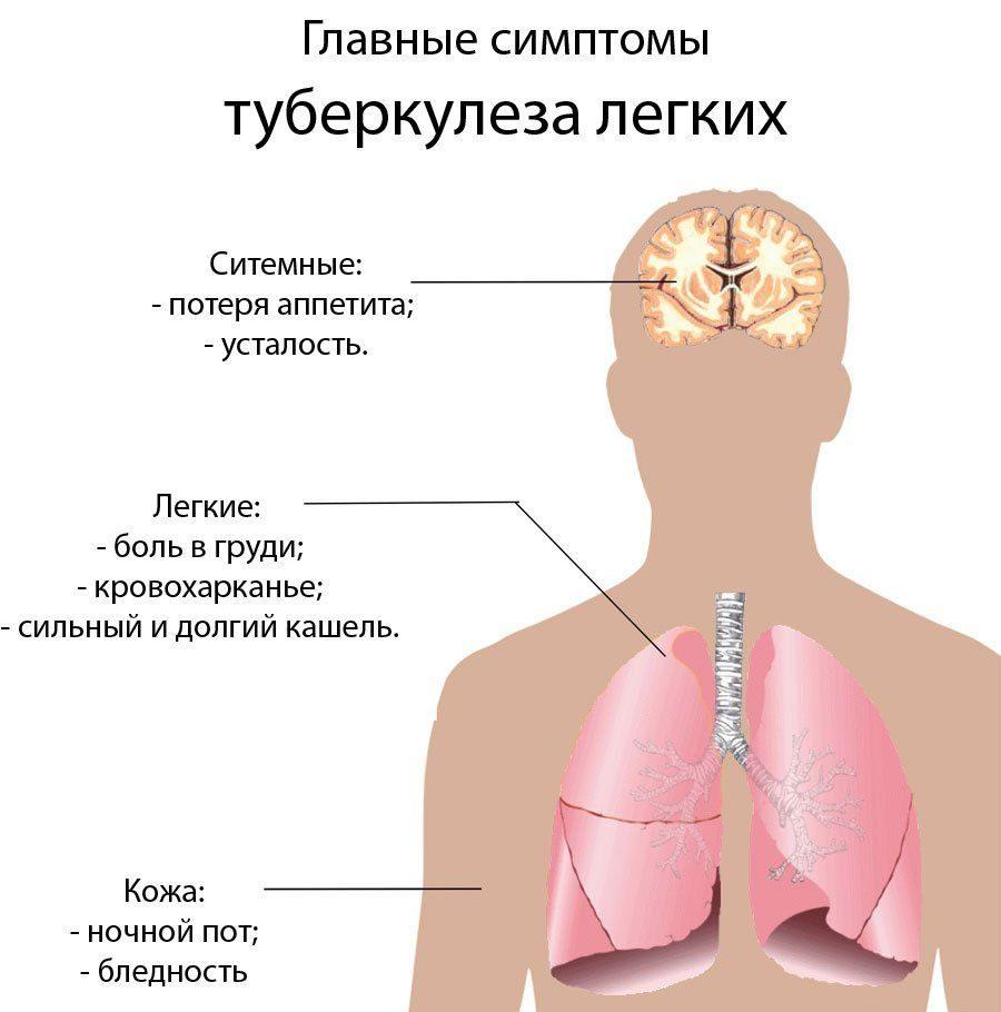 Симптомы ТБ