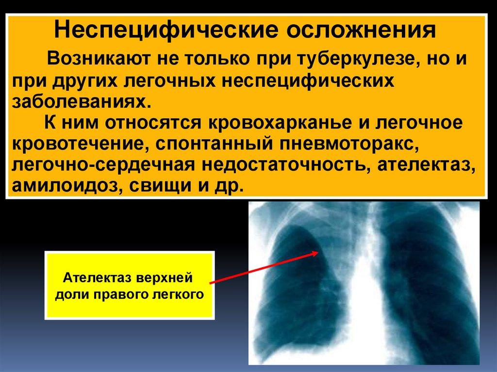 Осложнения туберкулеза