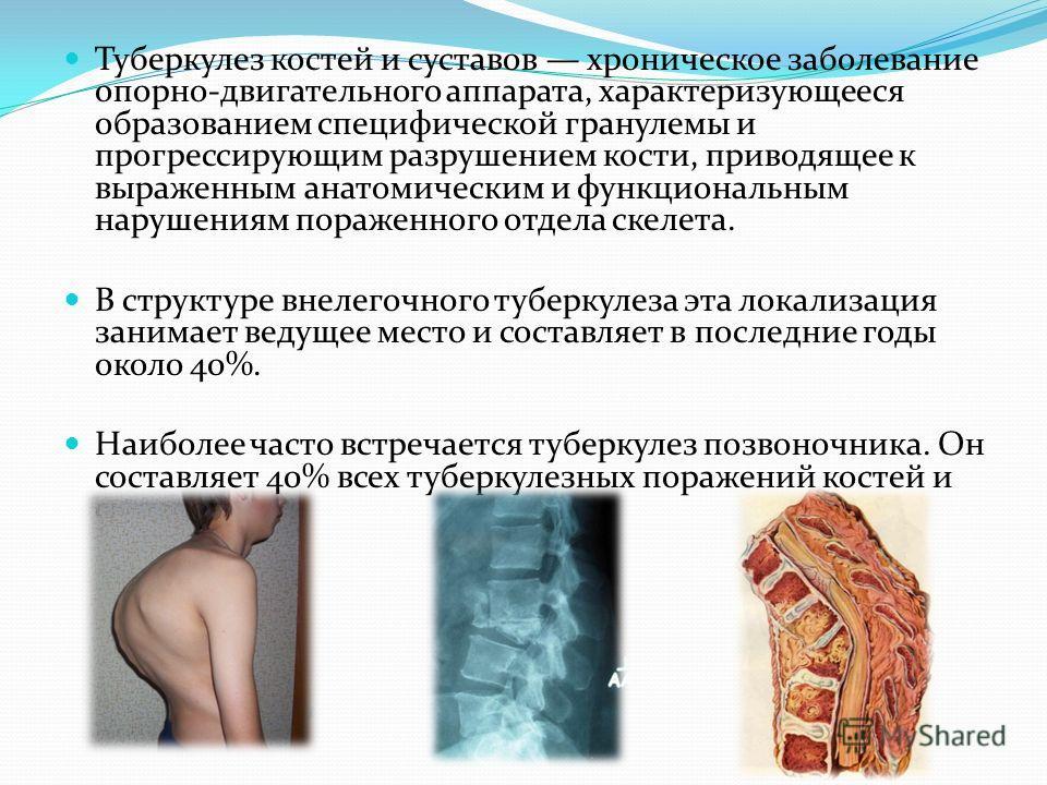 Артрит Пальцев Ног Лекарства