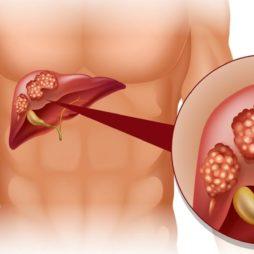 Последствия гепатита В