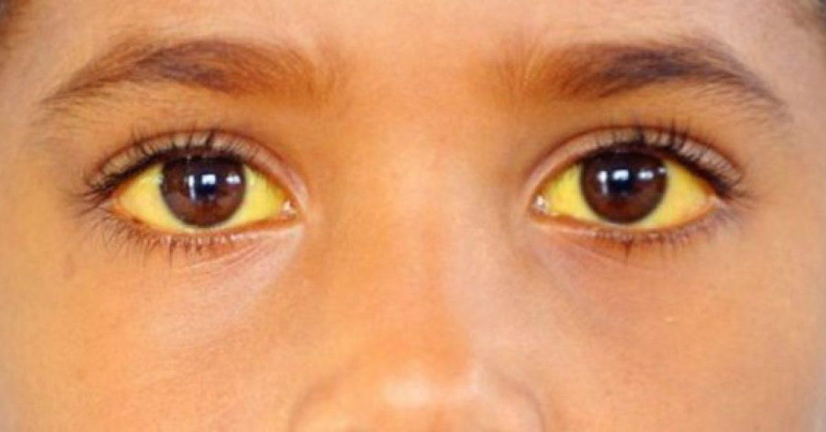 Синдром Жильбера
