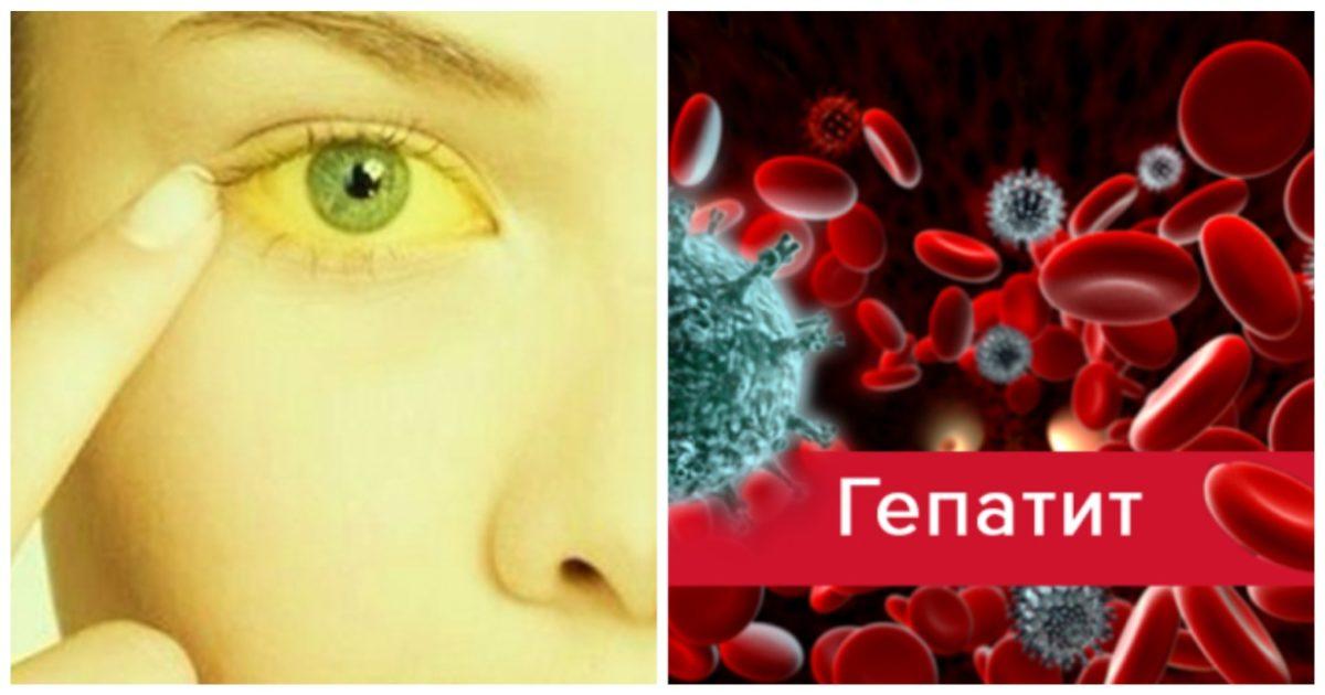 Желтуха при разных типах гепатита