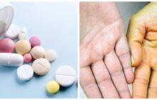 Лечение желтушного синдрома