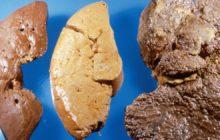 Последняя стадия цирроза печени