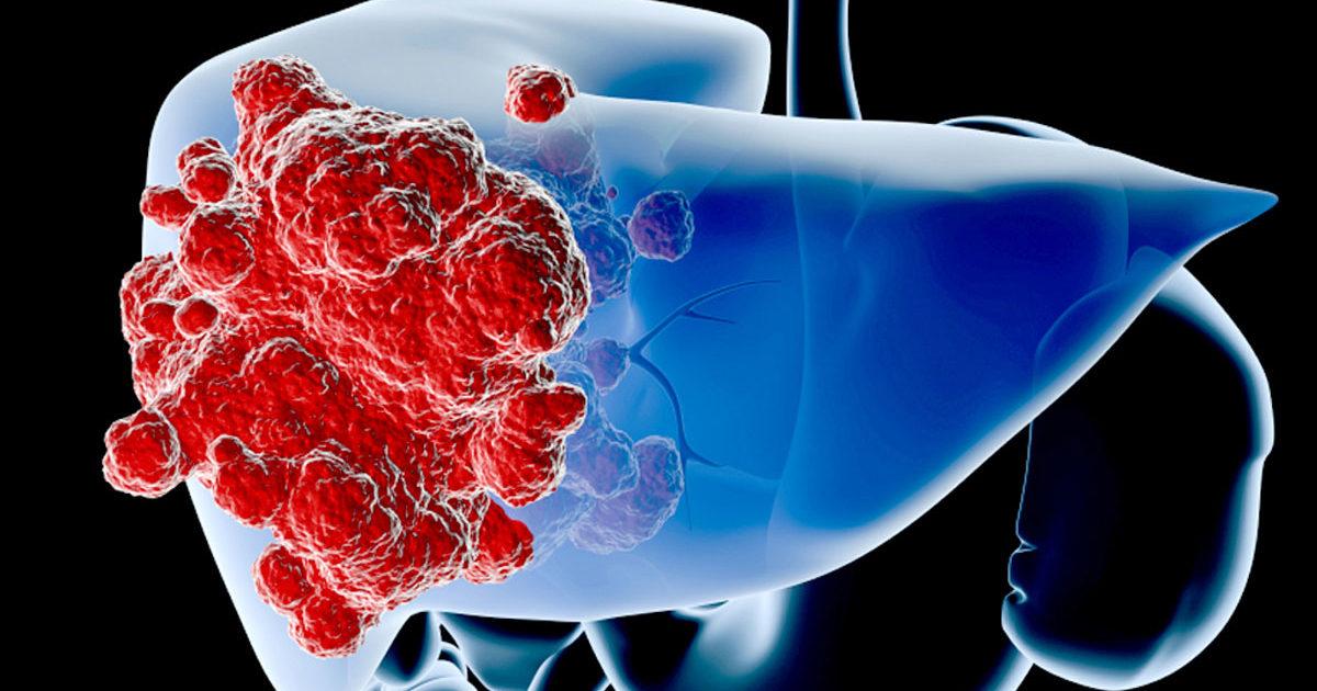 Рак печени симптомы и лечение у взрослых