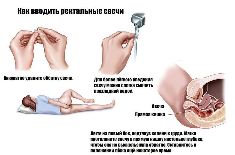 Свечи Диклофенак: инструкция по применению