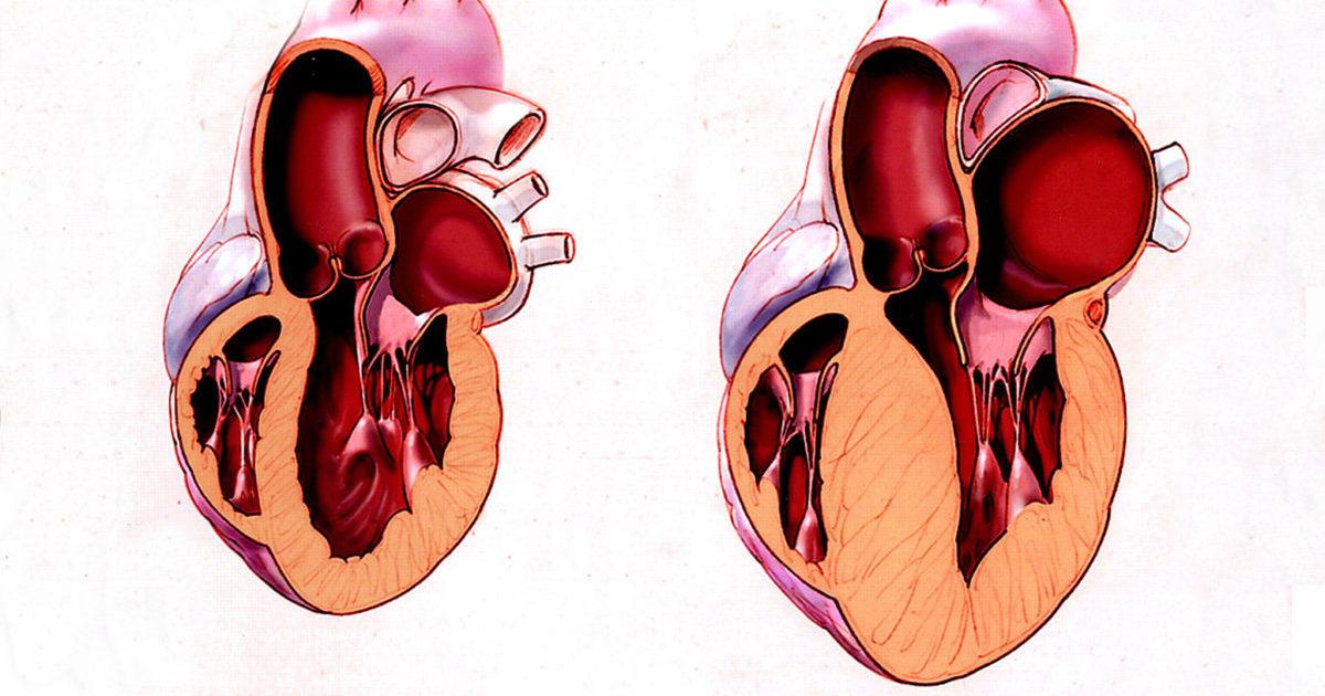 Дилатация полости левого предсердия правых и левых отделов сердца что это такое