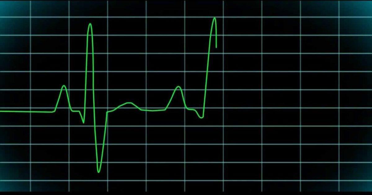 Пульс 50 ударов в минуту: что делать, причины брадикардии