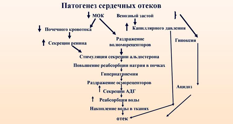 Механизм появления отеков