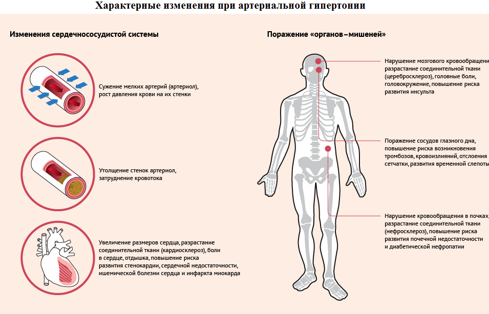 Изображение - Гипертония и гипертензия в чем разница 15-1-1
