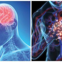 ИМ и мозговое кровоизлияние