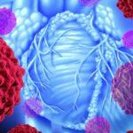 Рак сердечной мышцы